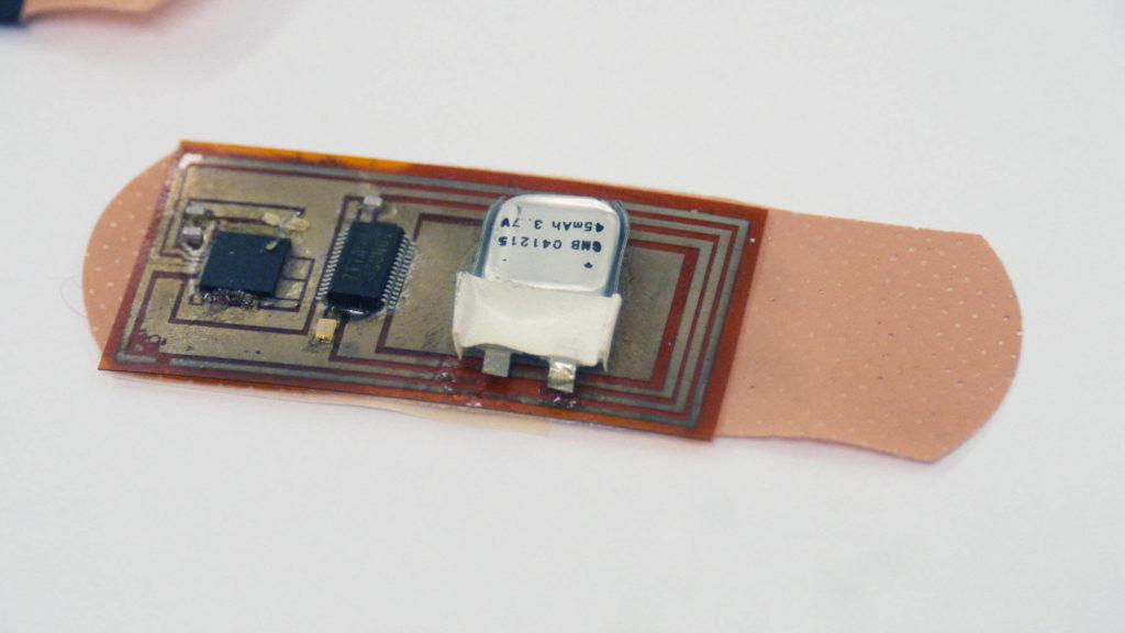 Smart Bandage Startup
